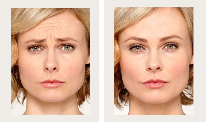 Frown lines | Crow's Feet | Forehead | Fine Lines | 3-5 months* - Botox | Dysport | Jeuveau
