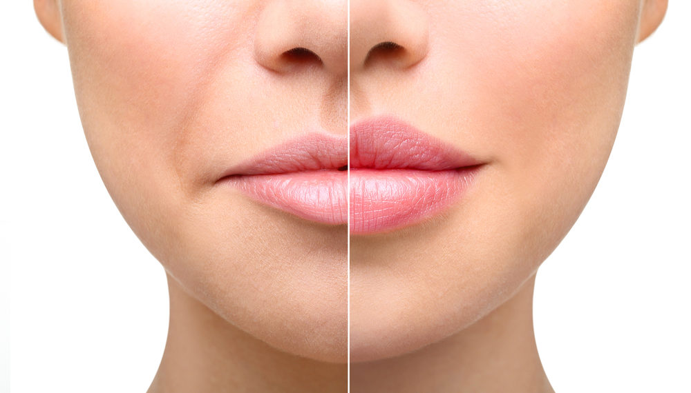 tailored to add subtle volume to the lips and smooth the appearance of vertical lip lines. Select dermal fillers are designed to give you natural lip enhancement, add volume and fullness to your moderate to severe facial wrinkles and folds. These products are tried and true with results up to 1-year+ with very little downtime. - Juvederm | Restylane | Volbella