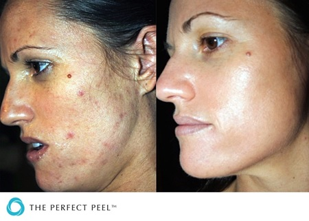Perfect-Peel-Before-After-Acne.jpg