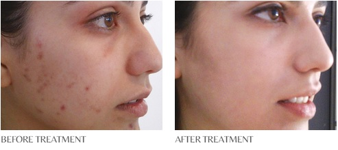 before and after perfect peel 1 (1).jpg
