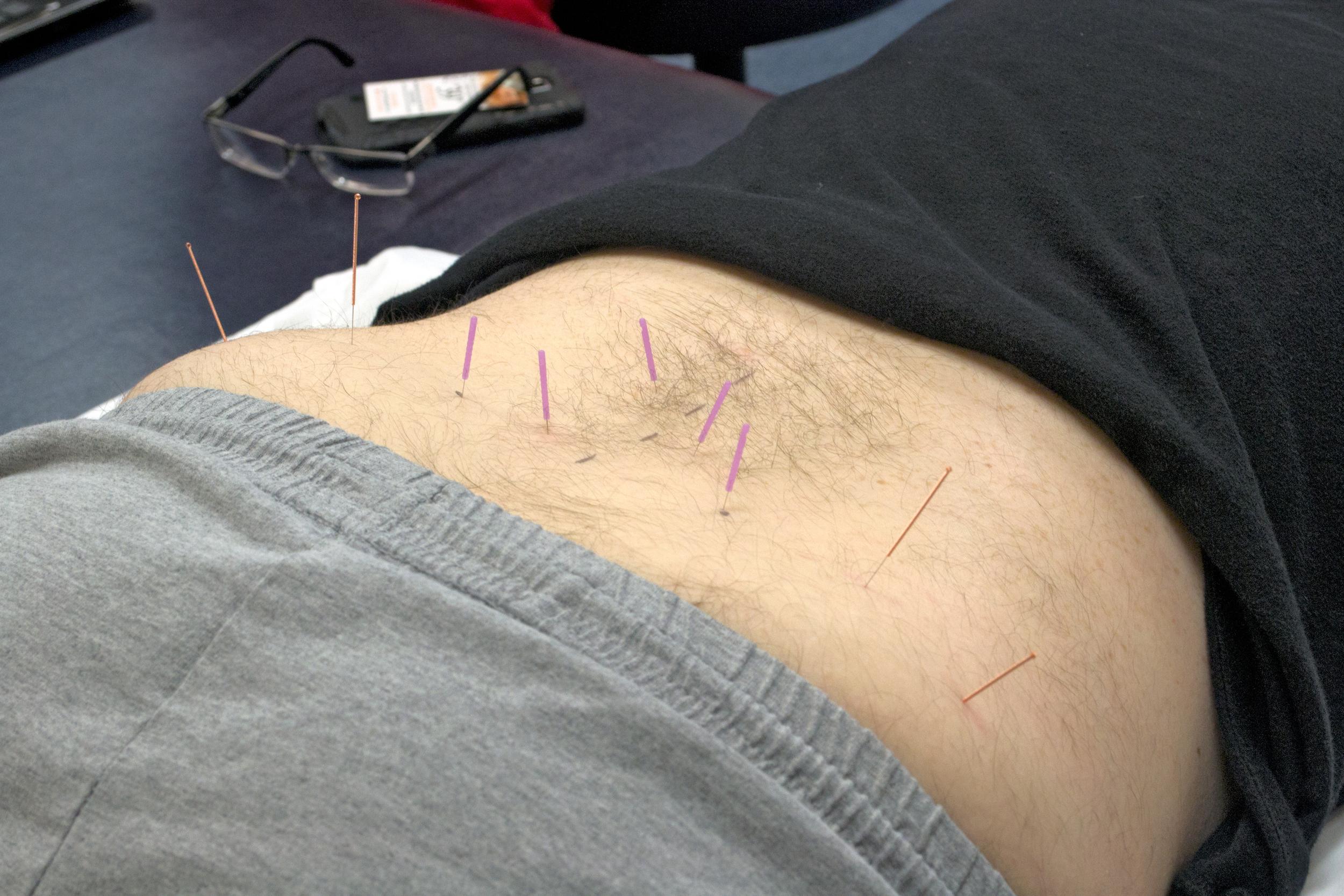 dry needling on lower back