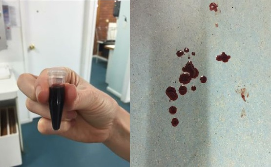 Signs of onion toxicity include red urine because the burst red blood cell pigment is excreted through the urinary system
