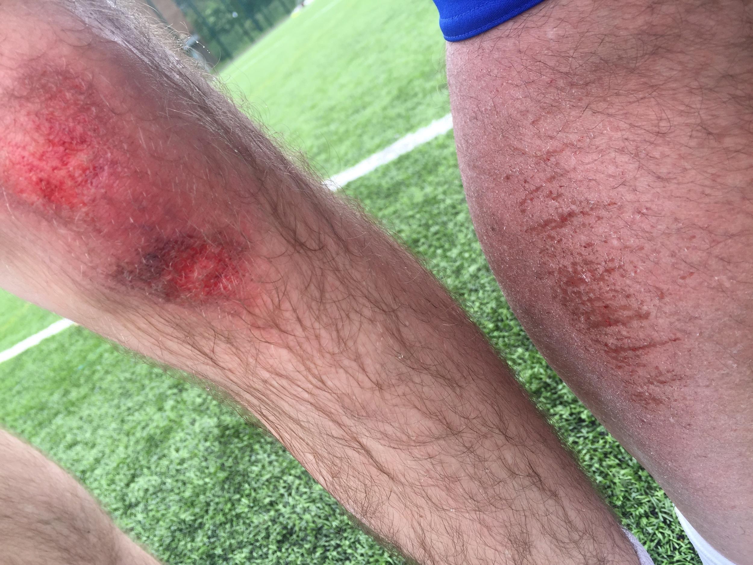 Sure Callum's leg 'looks' worse than mine!