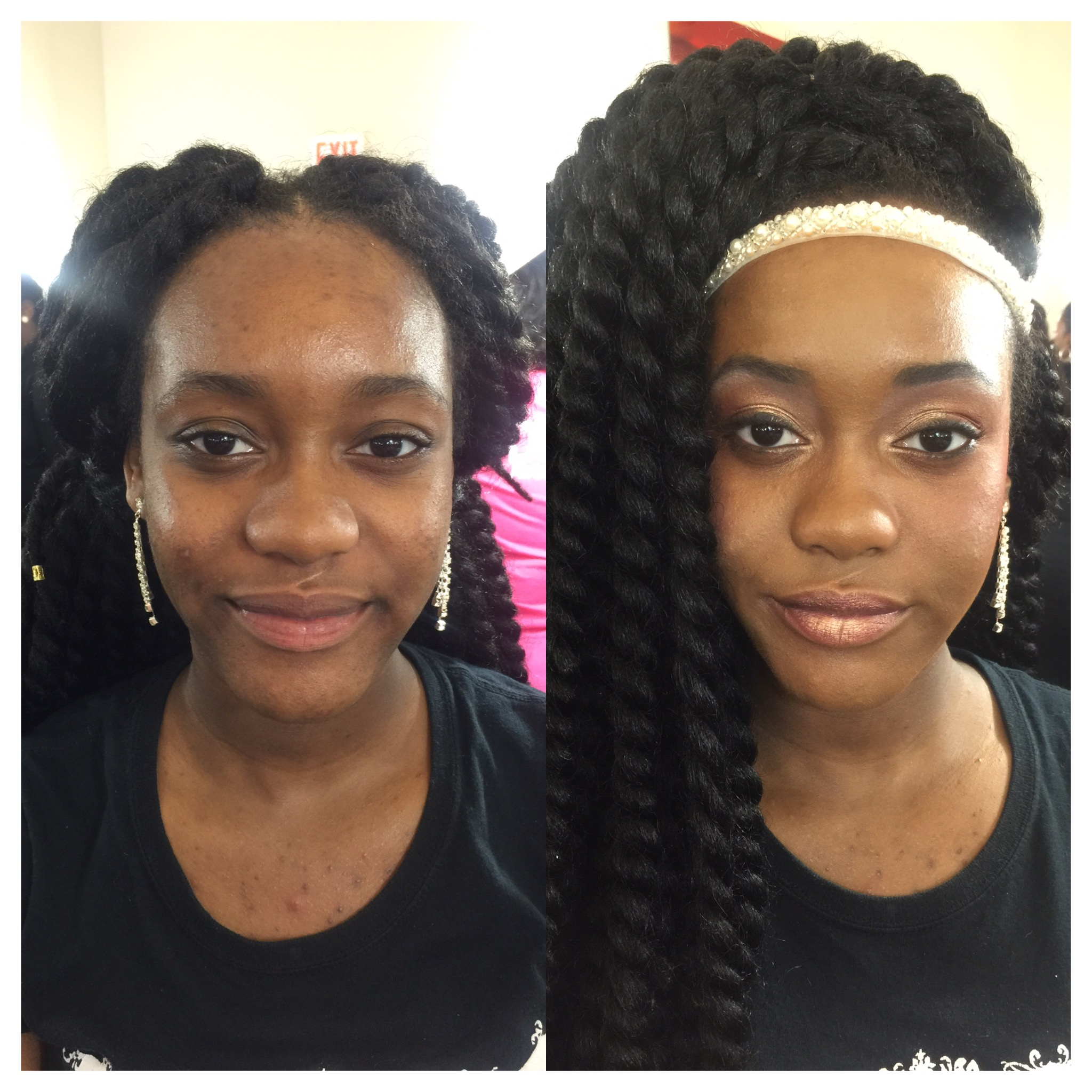 #beforeandafter the Dinair Paramedical foundation is amazing for coverage!