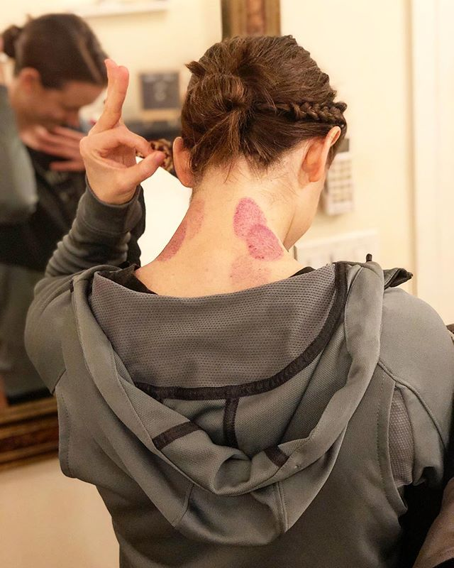 C O N T E S T! ~~~~~~~~~~~~ Attention anatomy nerds 🤓 Name at least *2 muscles* where this patient holds her tension (i.e. where her cupping marks are), and we'll give you 50% off one treatment! . We thought we'd do this to try to spruce up your weekend, in case you're with family and it's a little 🤪😊 xo from Avalon model: @erin.nelson.nyc . . . details: first 3 to respond. treatment must be used by 6/30/19. Applies to a standard follow-up treatment. 👍