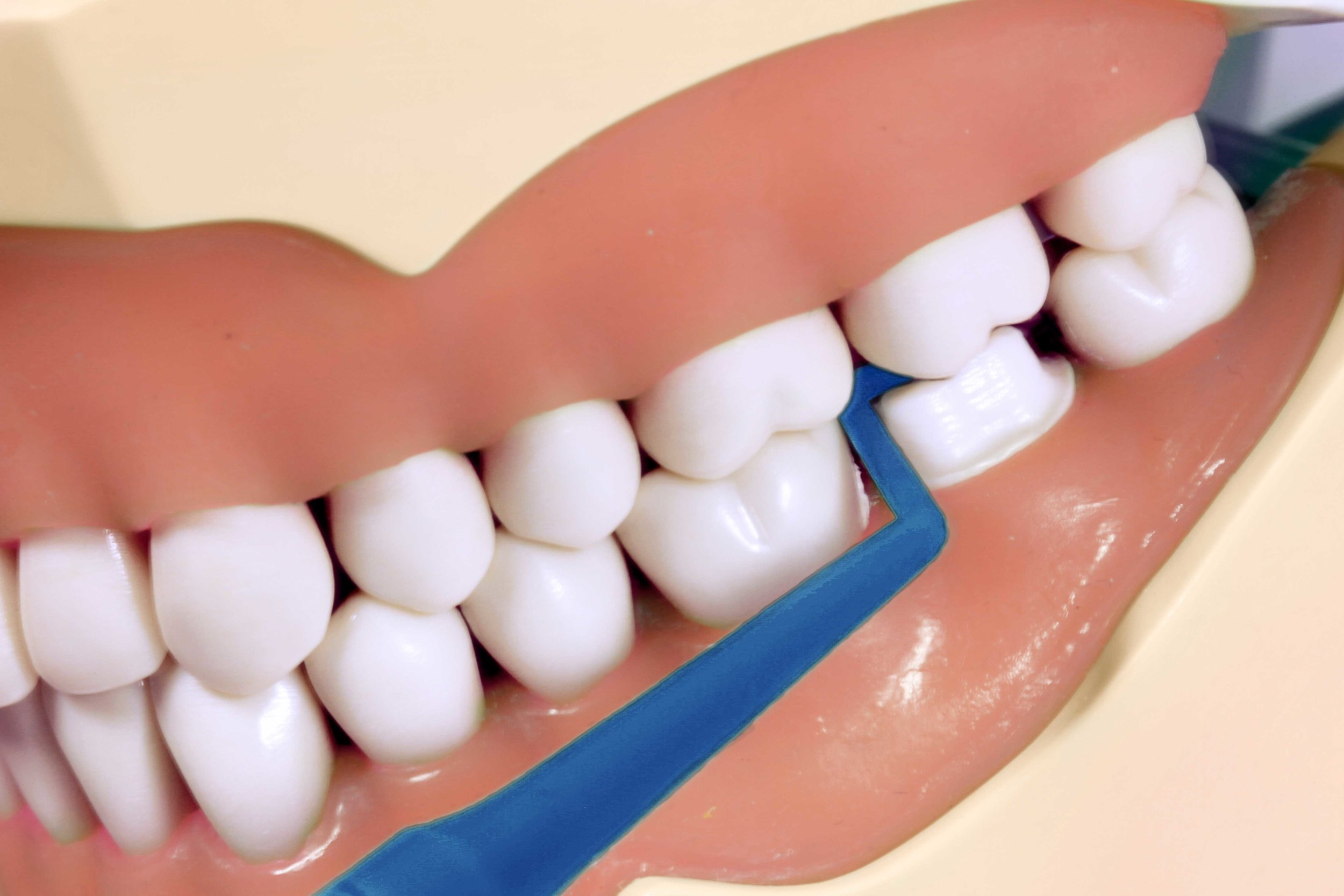 M Tip confirms mesial-half clearance