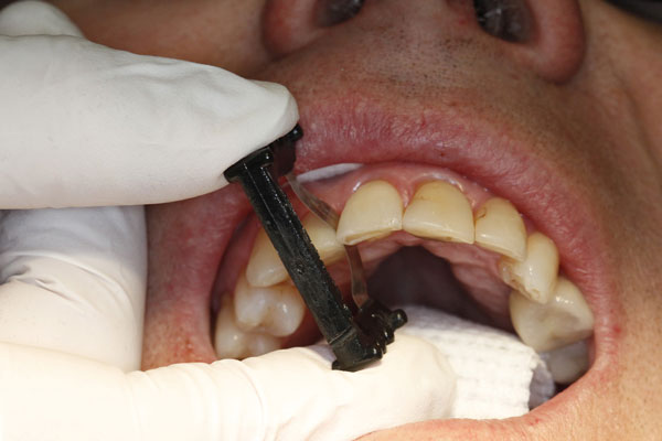 Fig. 3) With the abrasive side facing the crown, the ContacEZ Black Diamond Strip was inserted in the mesial and distal and passed buccolingually a few times to determine the side with heavier proximal contact. The side where greater pressure is felt against the strip is where the proximal contact is heavier.