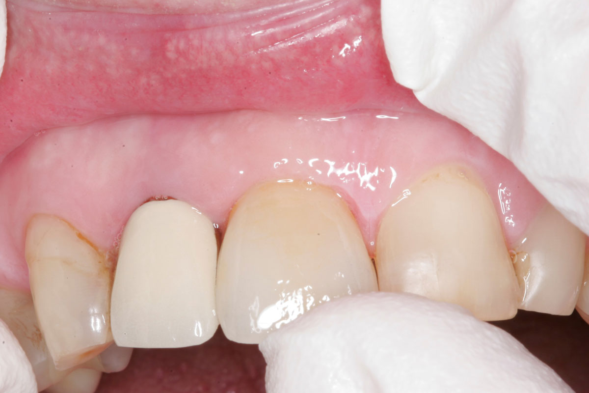 Fig. 1) A ceramic crown was placed on Tooth #8 and pressed up to the prepared margin. There was resistance to seating the crown against the prepared margin.
