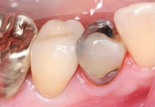 Fig. 2) The crown was lifted from the prepared tooth and rested passively between the adjacent teeth. There was a marginal opening due to overly tight contacts and it was found that the mesial margin had less opening, which indicated that there was more pressure in the mesial interproximal space.