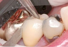 Fig. 4) Then the ContacEZ Diamond Dental Strip was moved to the distal part of the crown and inserted into the interproximal space. The ContacEZ Diamond Dental Strip was passed twice buccolingually. Because there was light resistance to the distal, it was not necessary to pass the strip more than twice.