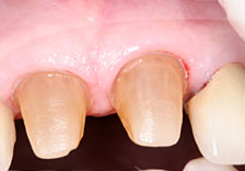 Fig. 1) Prepared abutment teeth #'s 8 and 9.