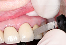 Fig. 8) The crowns were cemented on prepared teeth #'s 8 and 9.