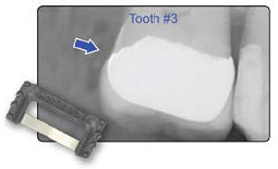 Fig. 2 By using the Black Diamond Strip, proximal contacts were adjusted and Interproximal Relief was restored on this crown on Tooth #3. This ensures that the patient will enjoy the immediate comfort, functionality, and long-lasting quality they deserve.