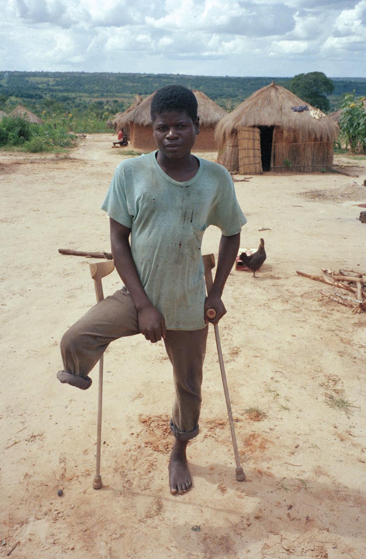 97-67-31_Boy_On_Crutches.jpg