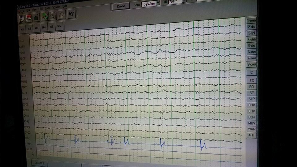 This is our Electroencephalogram in action ...