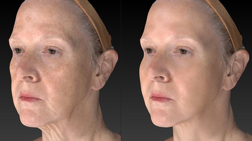 face lift/botox/fillers.jpg