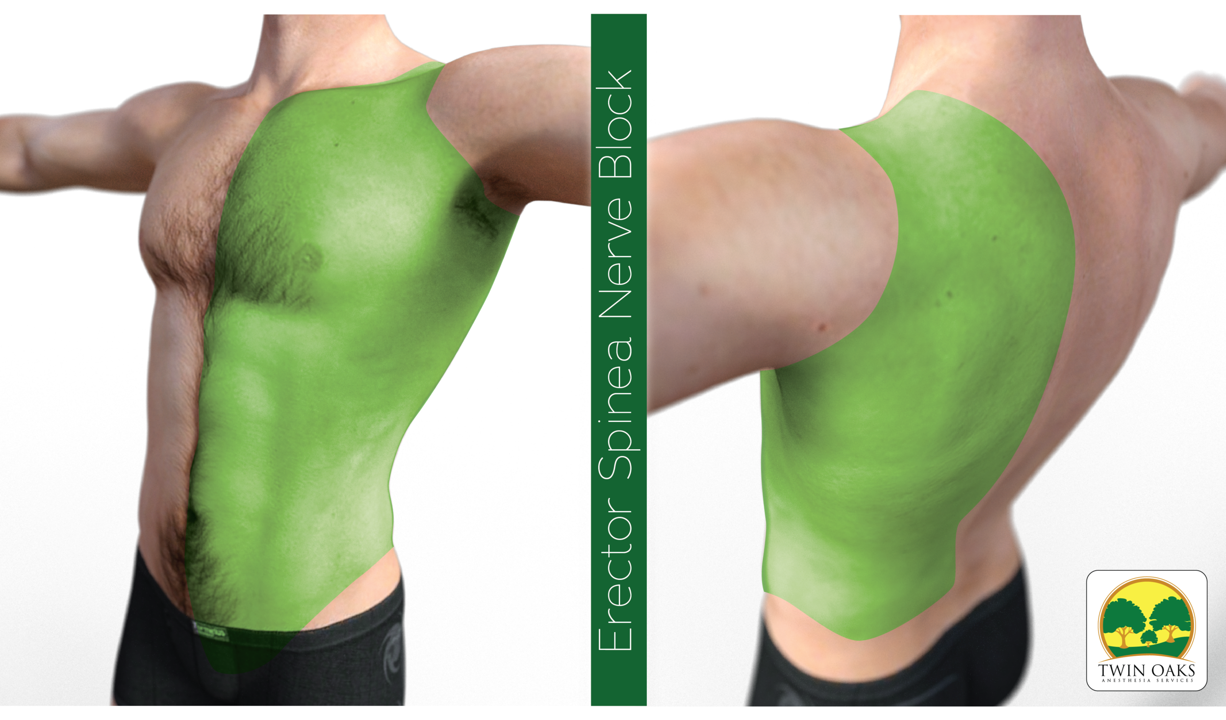Erector Spinea Block