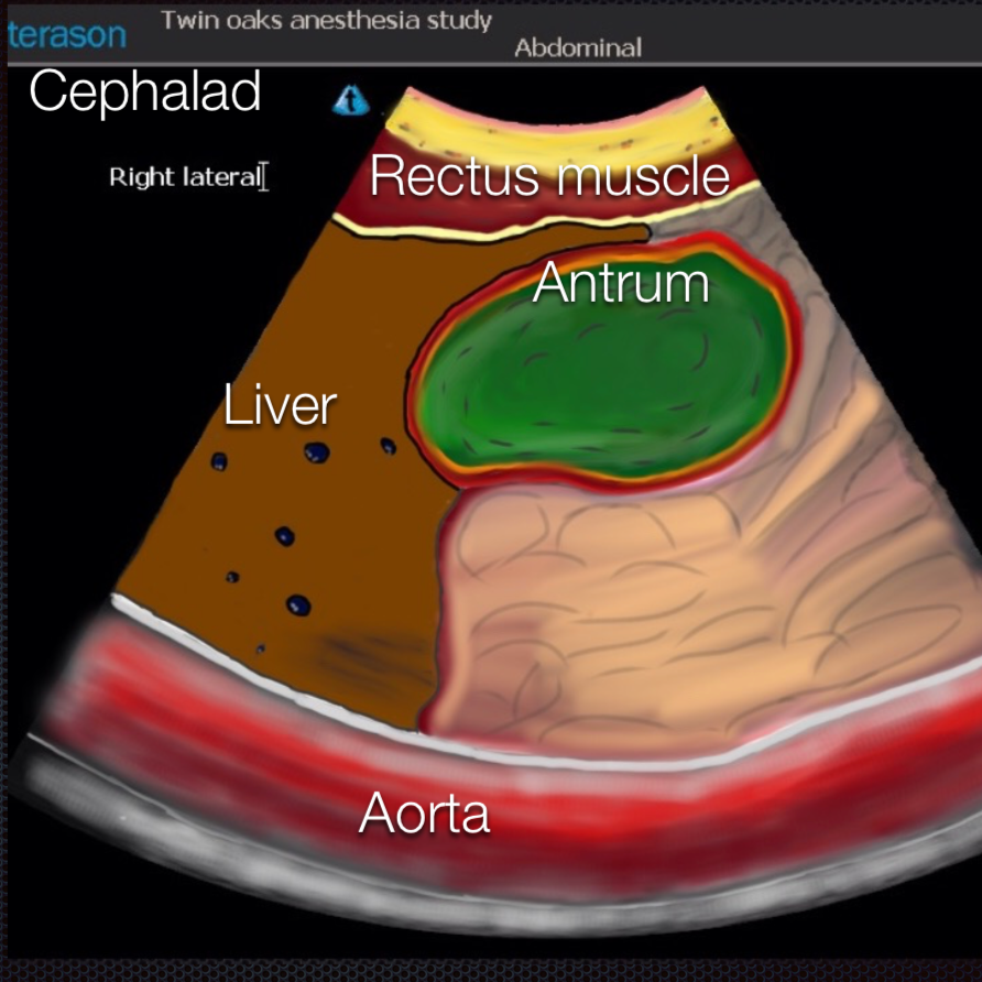 Gastric Ultrasound