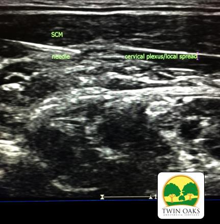 Cervical Plexus distribution