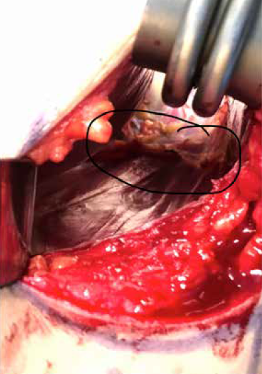 Figure 2. Intraoperative location and confirmation of ultrasound findings of pectoral nerve neuroma. The 2 muscles visible are the dark maroon-colored pectoralis major at the top left portion of the image and the pectoralis minor at the image's center. Note the circled region of tissue representing the large neuroma.