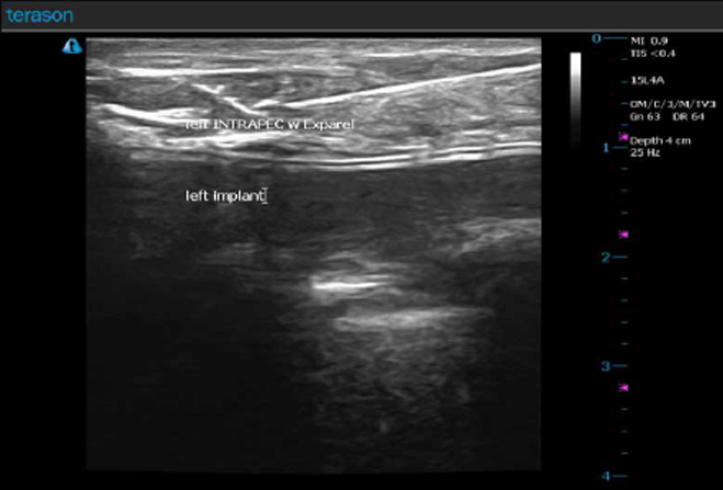 Figure 1. Actual ultrasound image of the patient's INTRAPEC. Note the needle placed in plane, directed to the thickest portion of the pectoralis muscle. Injections were a total of 15 mL of liposomal bupivacaine and bupivacaine mix. Image courtesy of Jonathan Kline, CRNA, and Twin Oaks Anesthesia.