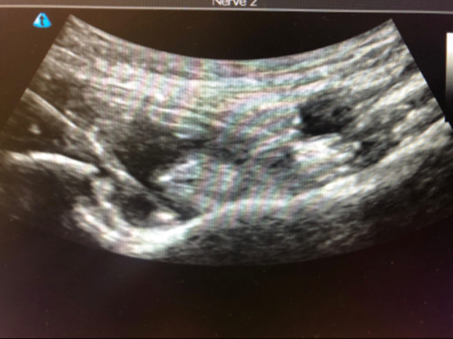 Figure 3. Actual PENG block with needle at the IPE. Not the hypoechoic local anesthetic pushing the psoas tendon arteriorly.
