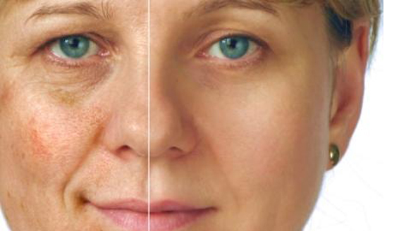 Sun damage, age spots, liver spots, or brown spots usually first appear on the face and are the result of genetic susceptibility as well as sun exposure. Contrary to common belief they have nothing to do with age or the liver although one may get more as they get older. In addition to the face, brown spots often can occur on the chest, arms and any sun exposed areas.