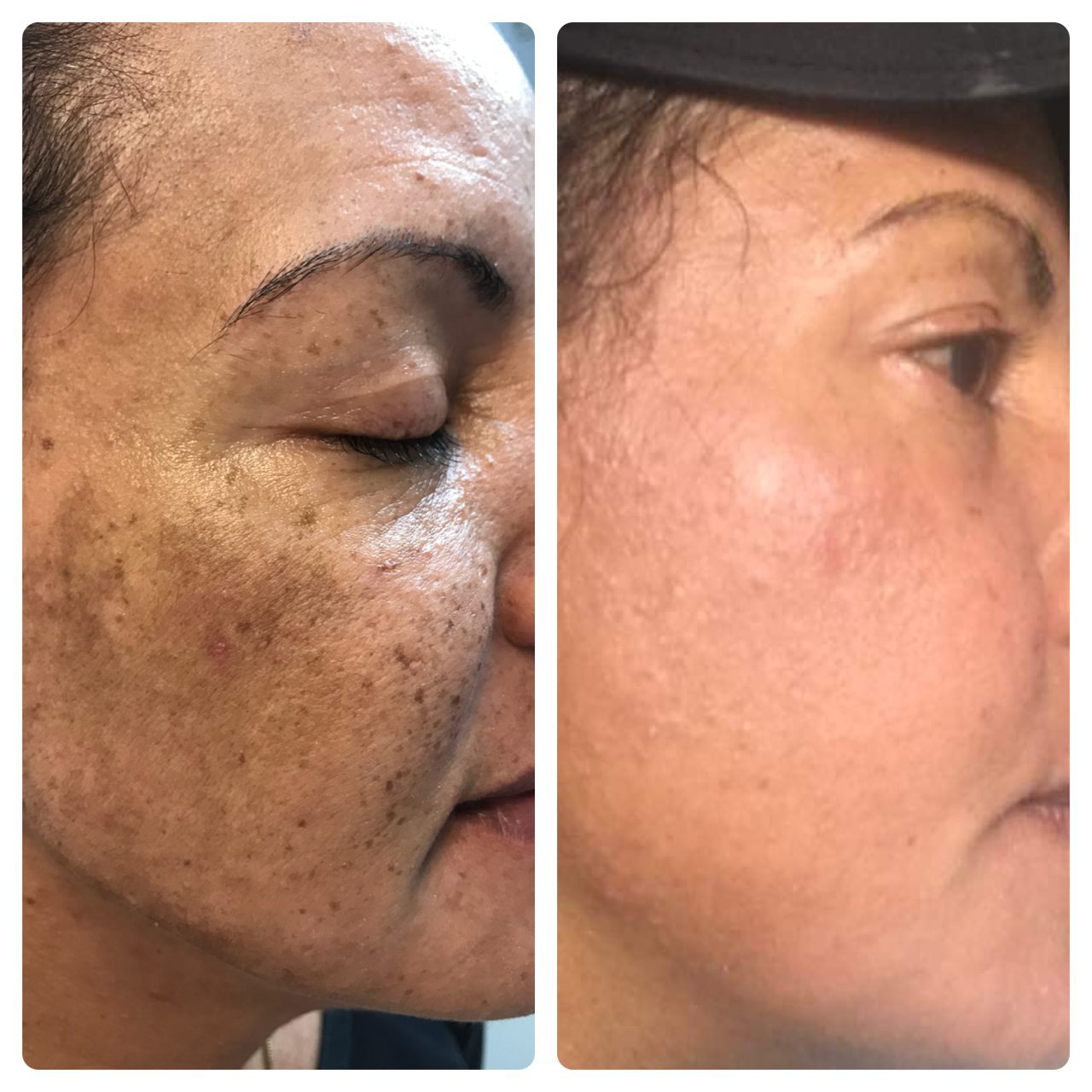 melasma before and after idealaser.PNG