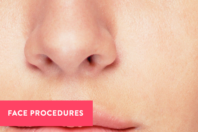 Copy of Face Procedures