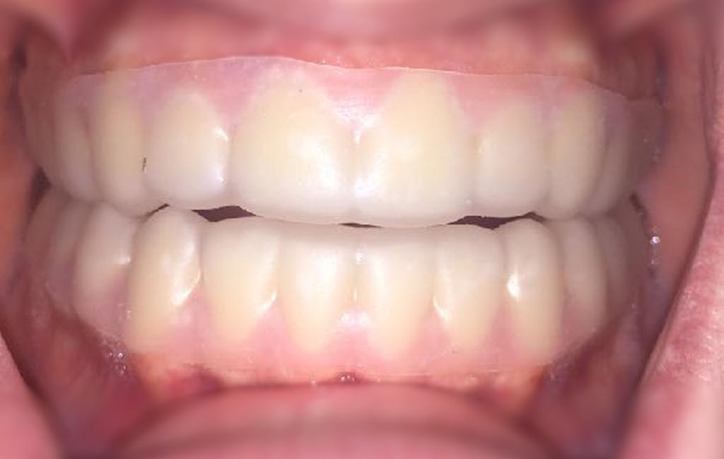 Example of Zinkh dental tray/splint.