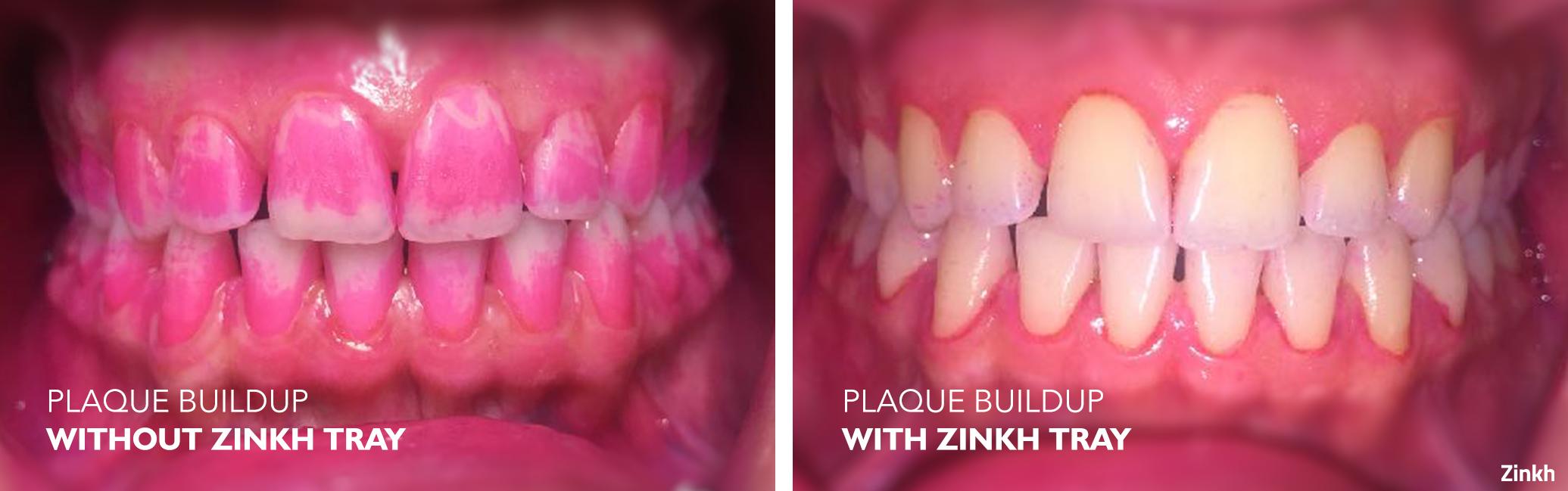 Zinkh-patient-B.png