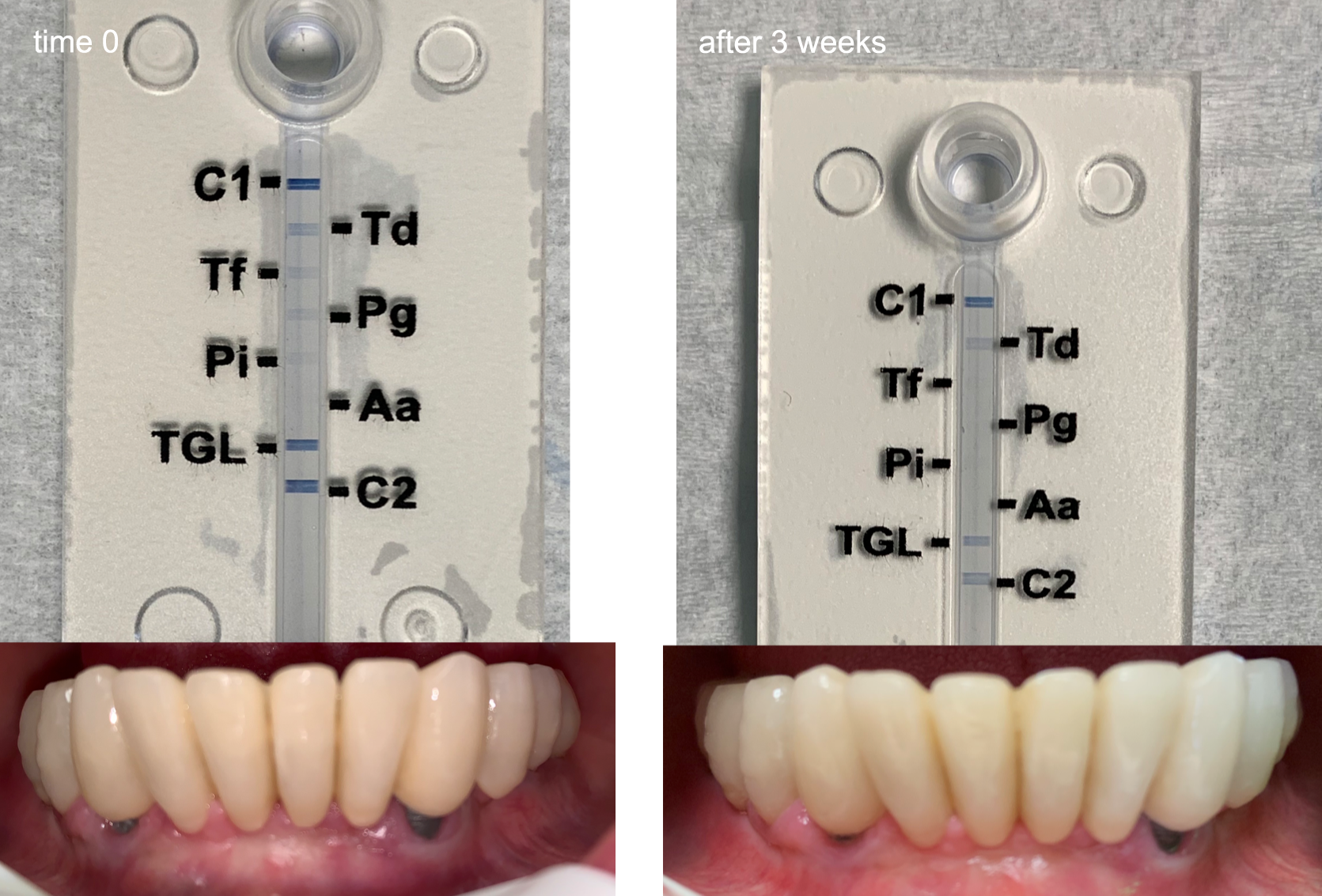 PerioPOC test results before treatment and after treatment. Tests performed by Dr. Gianluca Di Chiaro, a clinical and scientific consultant working for Zinkh NV, a Parx Plastics partner. (click image to zoom)