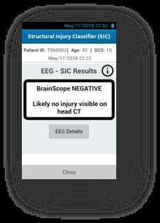Brainscope negative.png
