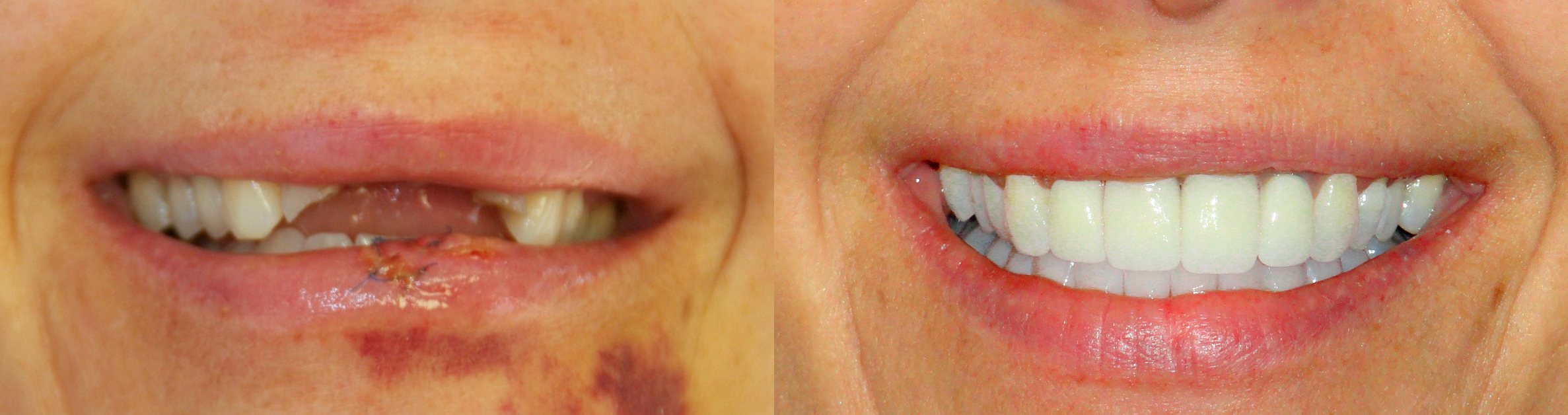 This patient came to Dr. Ingram after an unfortunate accident left her front teeth destroyed.