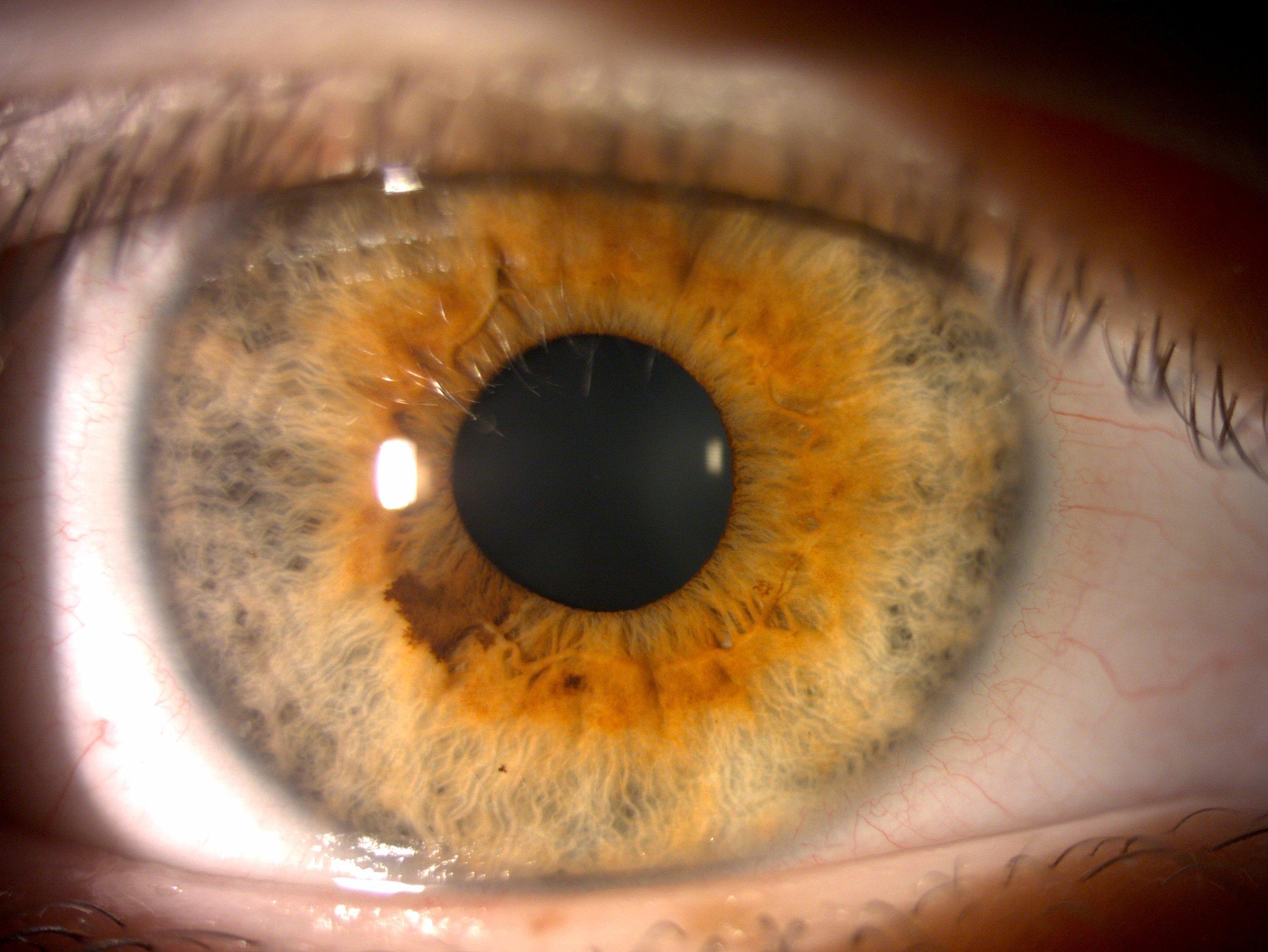 Iris photo taken by Dr. Jillian Wong, optometrist @ OPT clinic