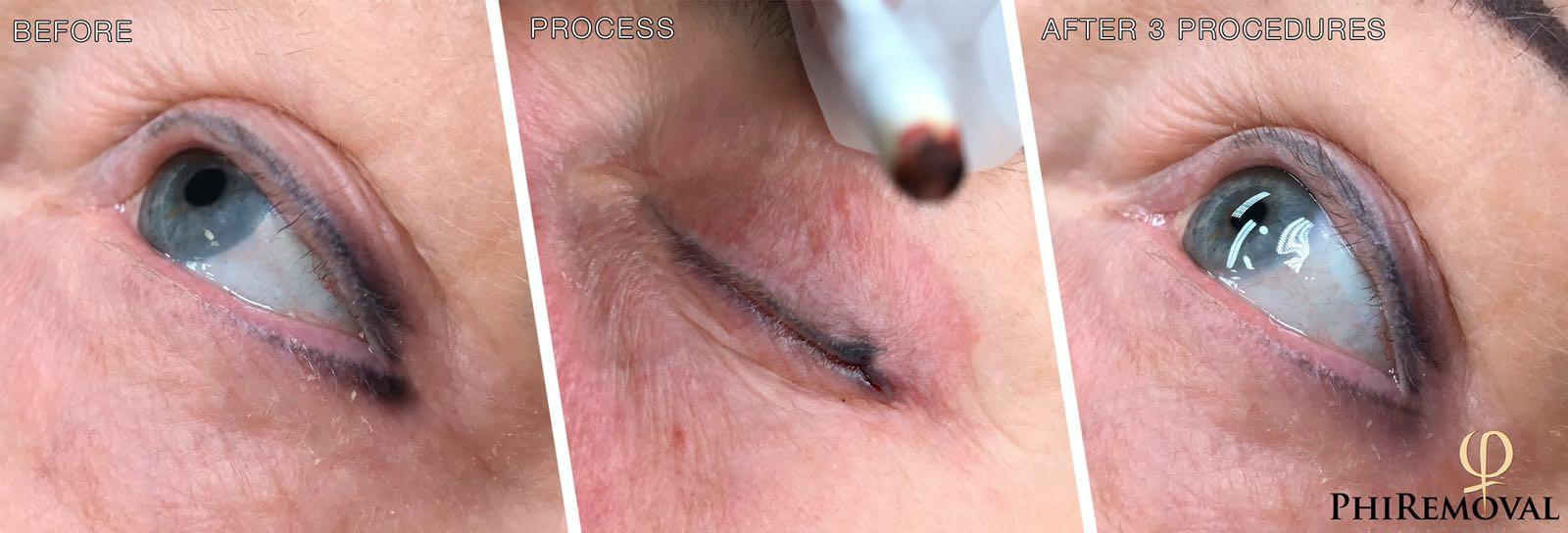 eyeliner_tatoo_removal_houston_bigboldbrows.jpg