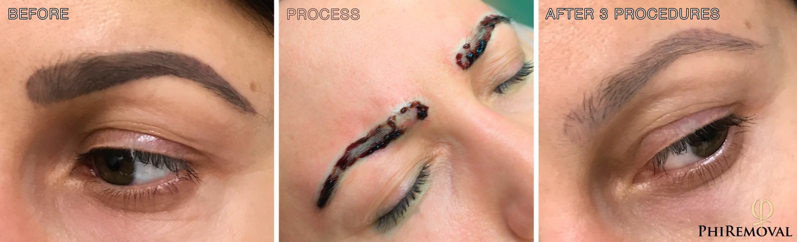 eyebrows permanent makeup tattoo removal
