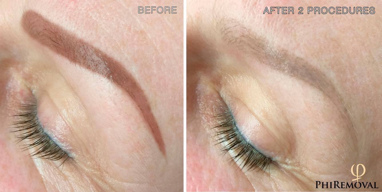 eyebrows tattoo removal