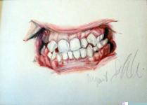 dental-case-3.png