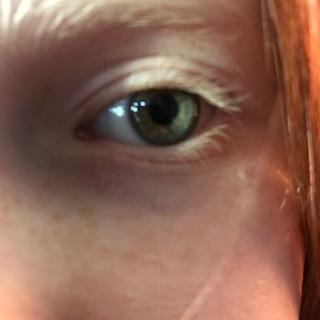 Nora eye.JPG