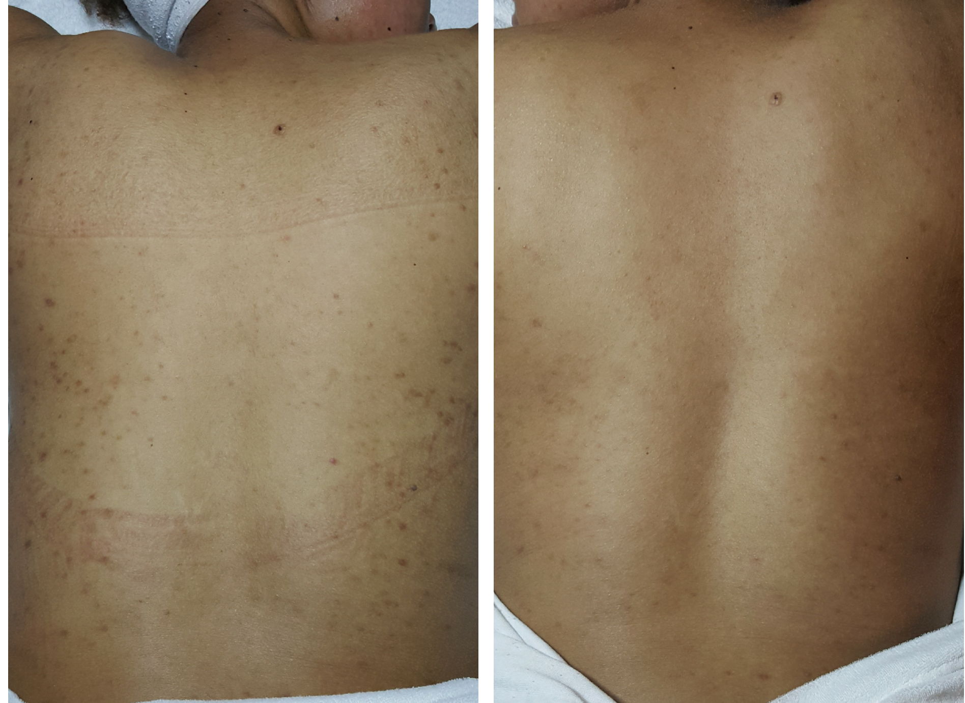 Back Treatment- before and after