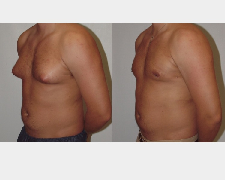 After 8 Lipo Body Shaping System Treatments and 8 Cellulite Massage System Treatments.