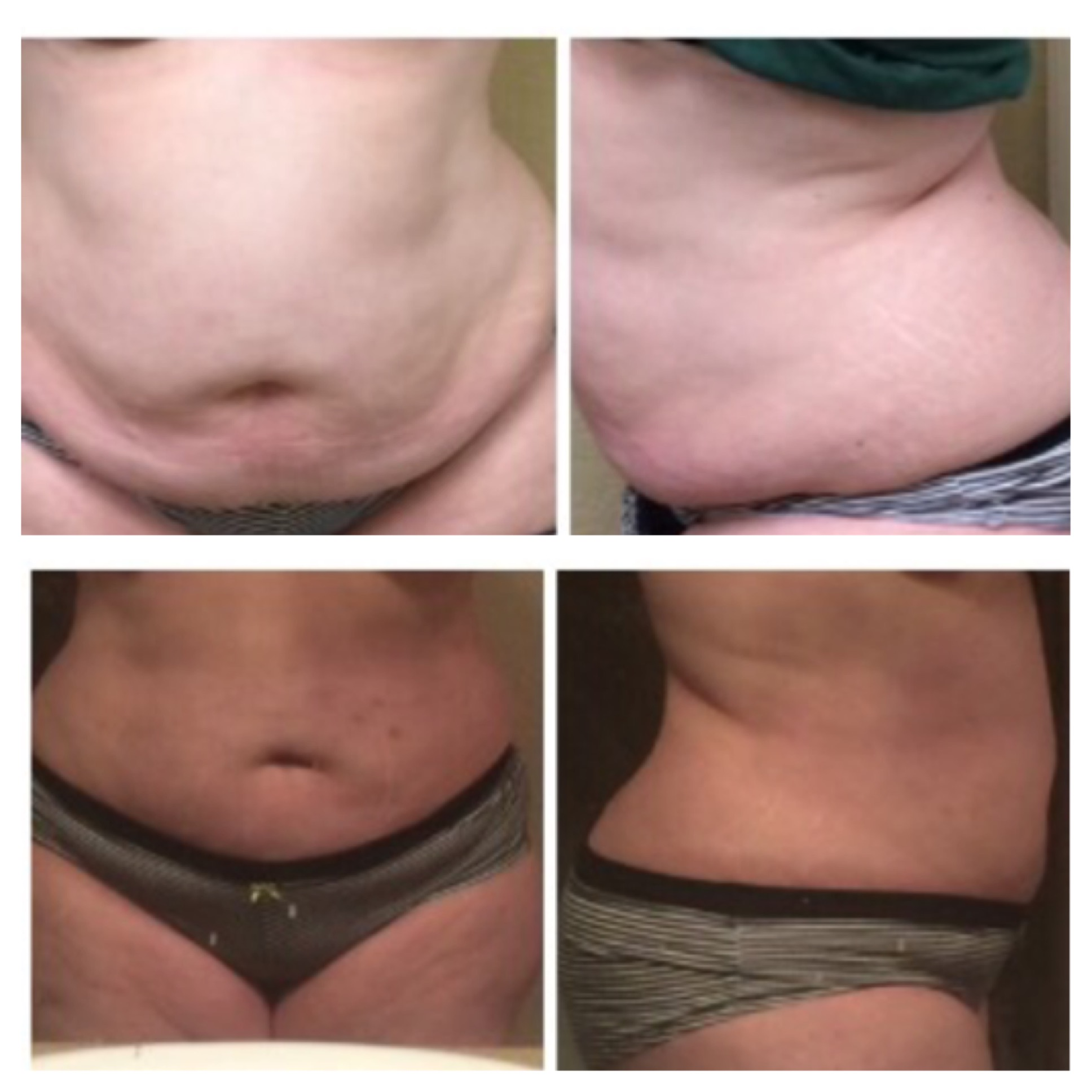 Fast Results That Last!   Real Client Pictures!   After 4 Treatments Twice a week for 2 weeks.