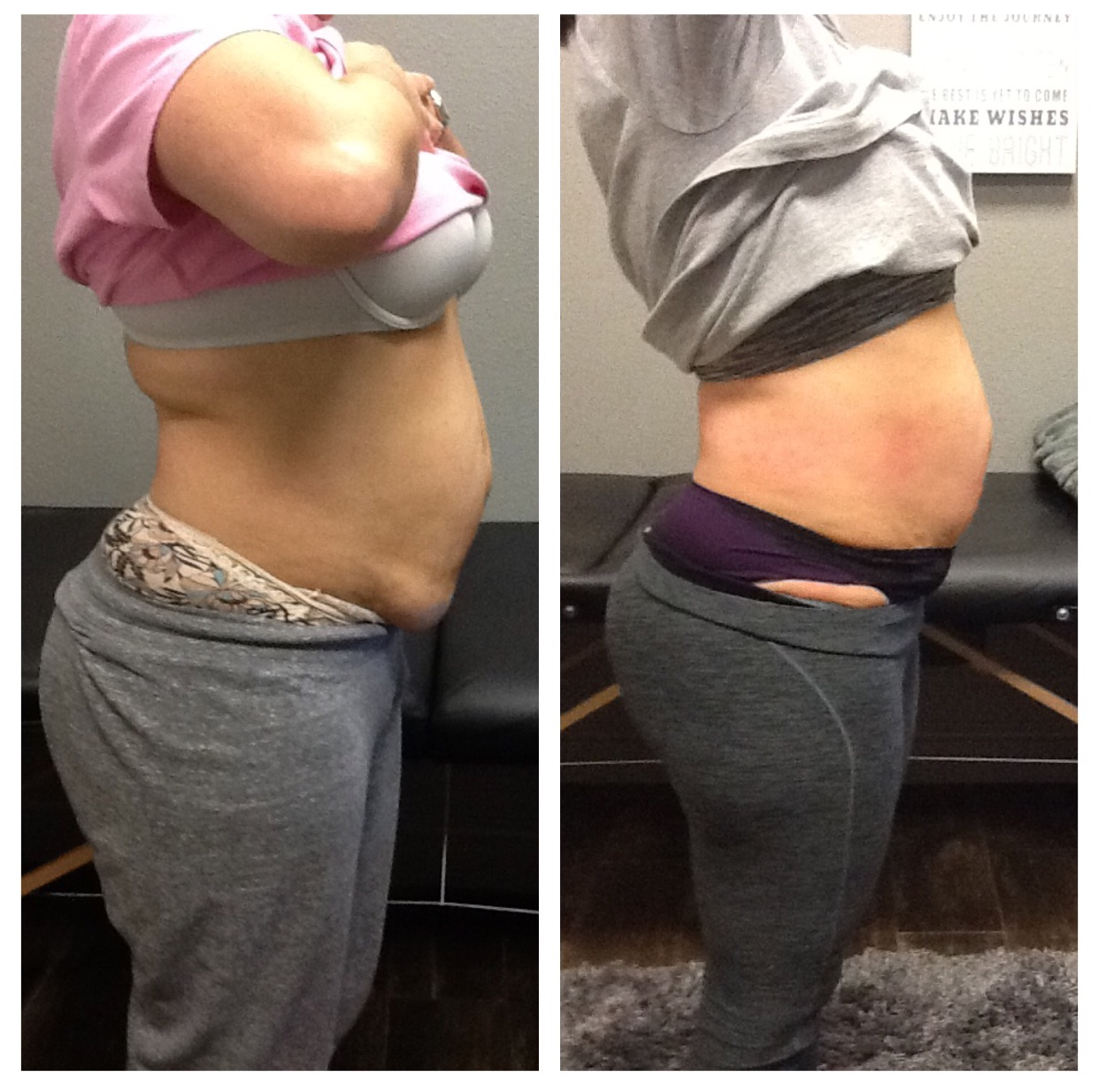 After 6 Lipo Body Shaping System Treatments and 6 Cellulite Massage Treatments - Results after 2 days a week for 3 weeks.