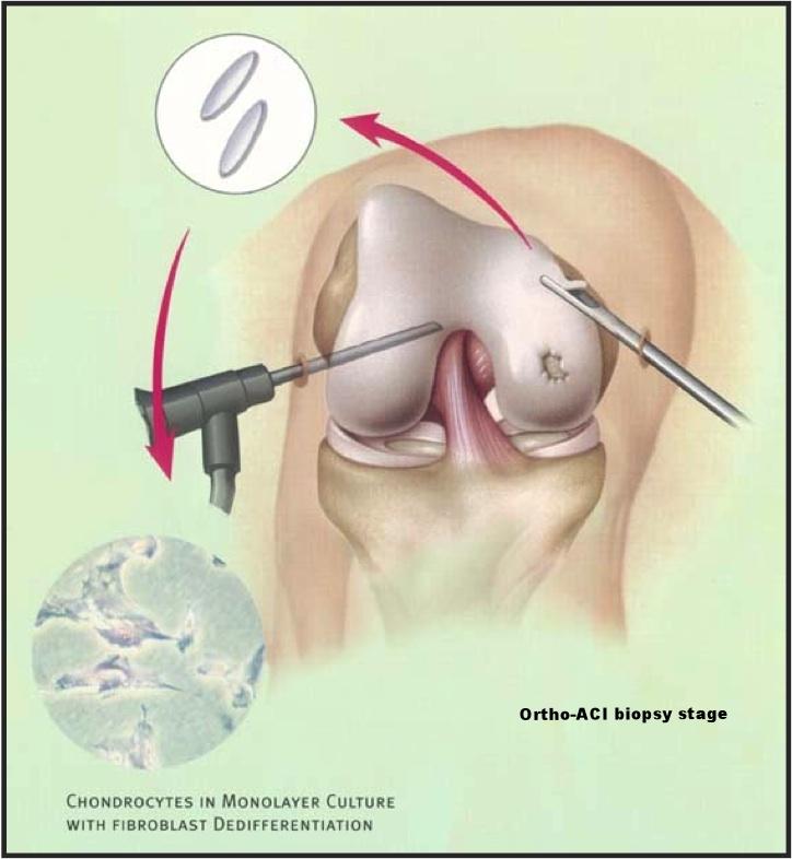 ACI biopsy.jpg