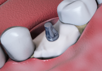 2. CelGro™ placed over defect and implant abutment installed