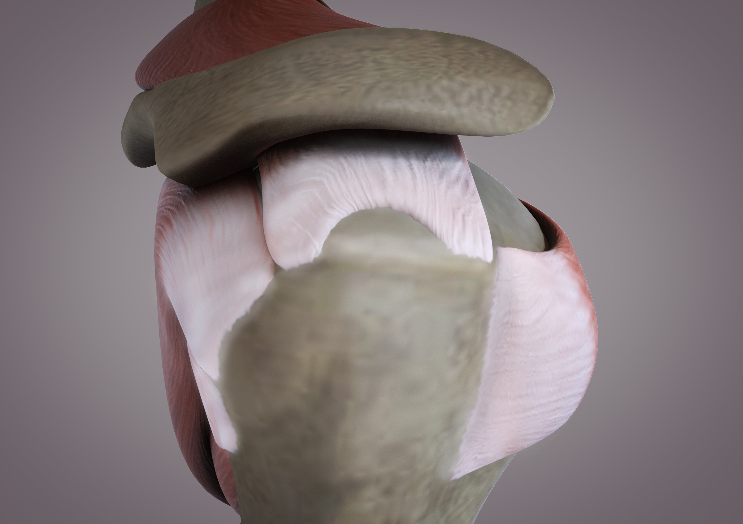 1. Tendon tear   Tendon detached from bone and retracted at tear site