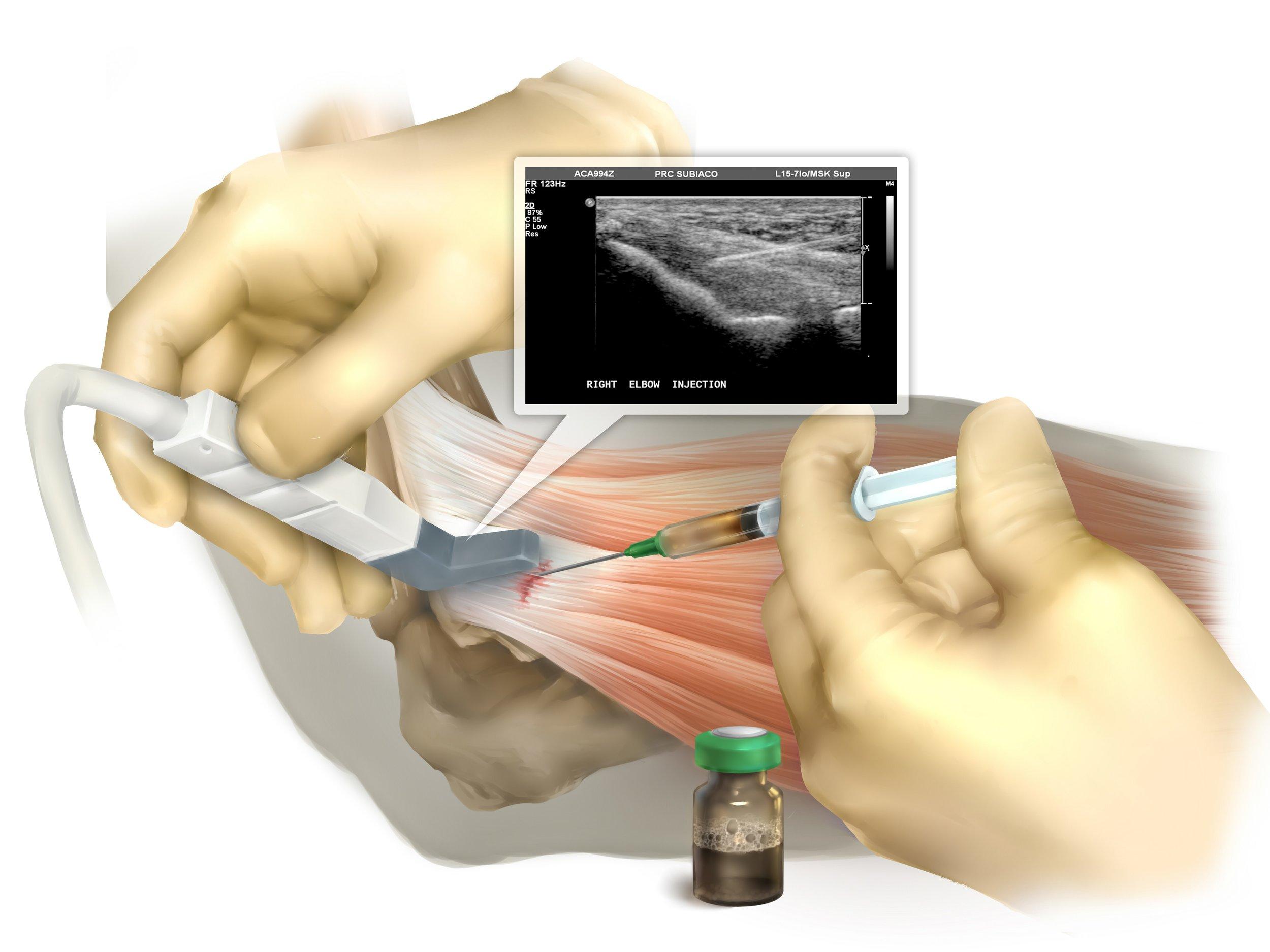 tennis elbow injection.jpg