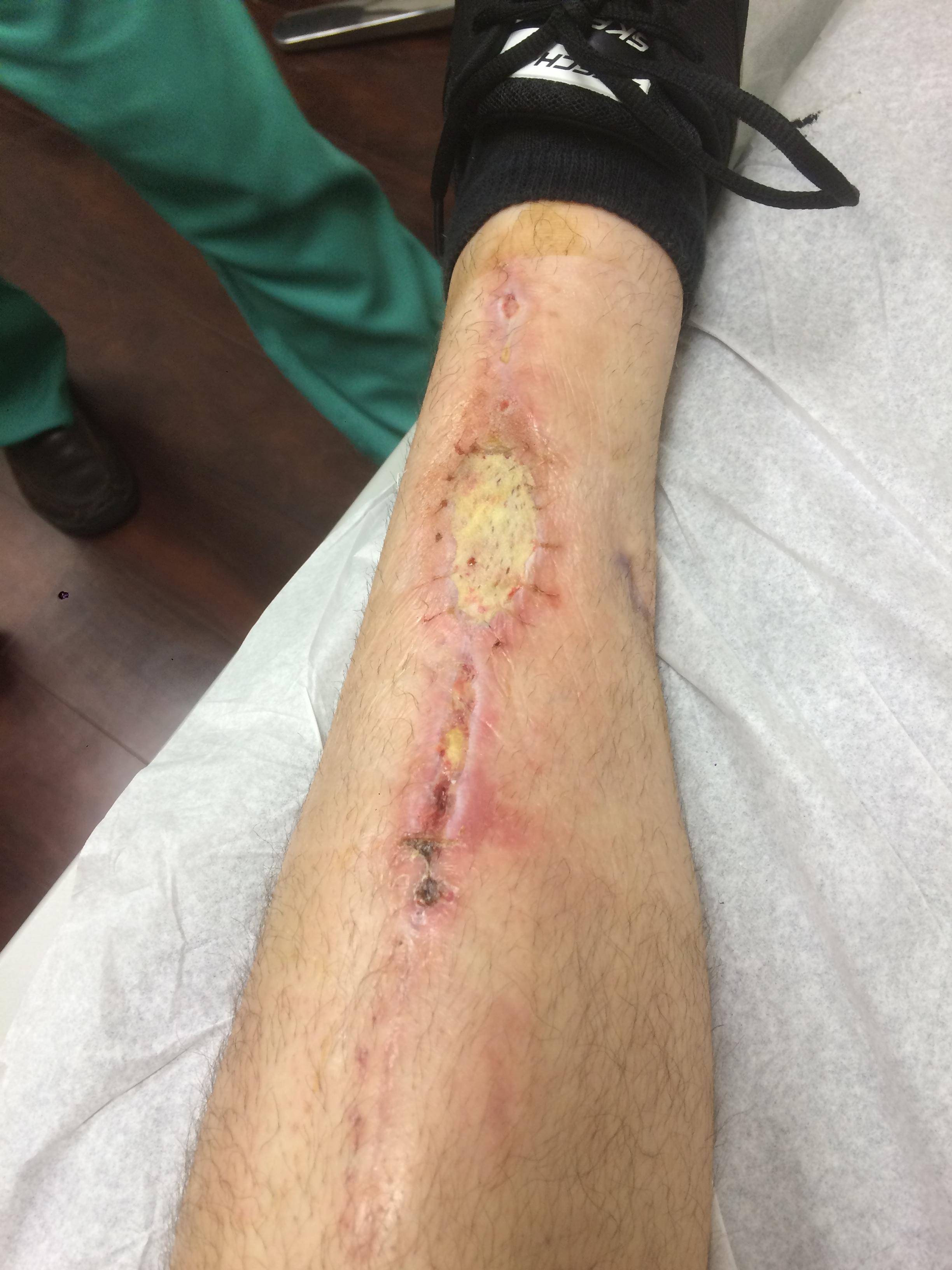 Incision site after skin graft.