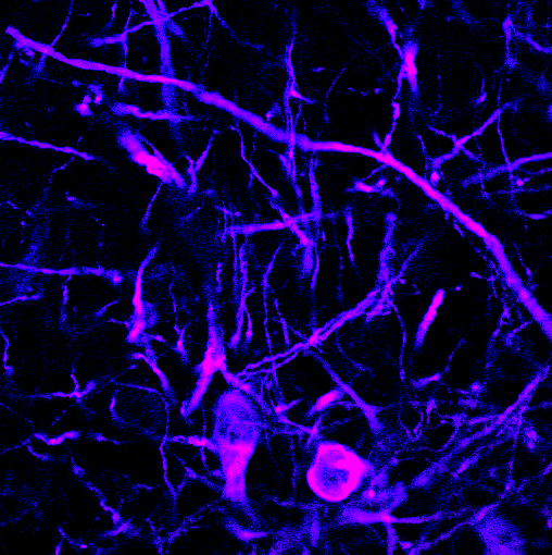 Immunofluorescence staining showing colocalization of tyrosine hydroxylase (labelled in blue) and the SNARE protein SNAP-25 (labelled in red) in both the somata and the dendrites of midbrain dopamine neurons.
